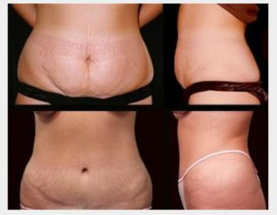 Step-by-Step Guide in Performing Tummy Tuck Procedure