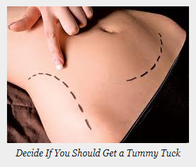 decide to do tmmy tuck